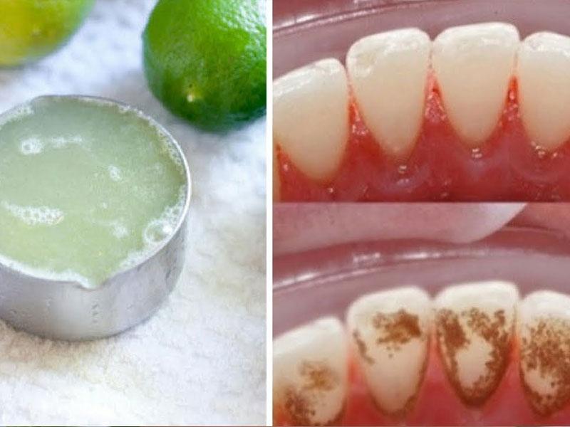 Giúp răng trắng sáng tự nhiên nhất